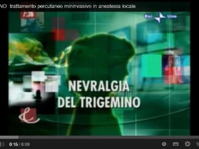 Trattamento della nevralgia del trigemino in anestesia locale